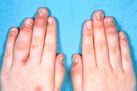 Psoriatic Arthritis: Nail Changes, Rash and Arthritis
