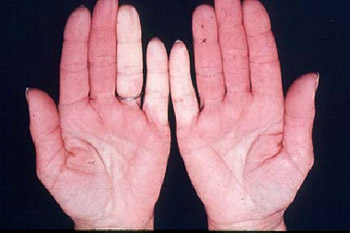 raynauds-syndrome